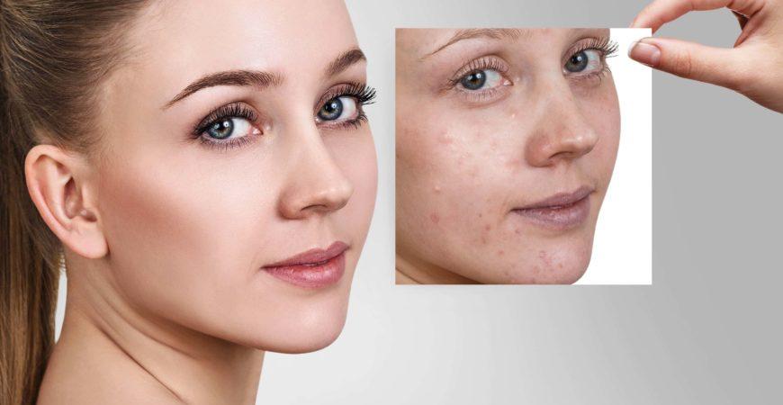 mda skin  Pigmentation Treatment in chennai | MDA Beauty Treatment